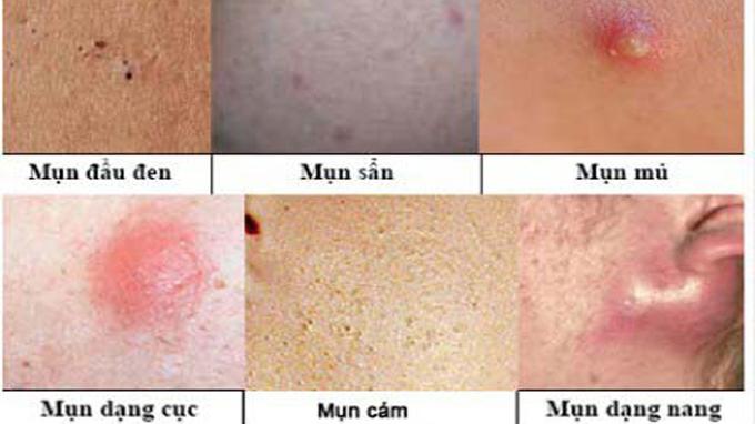 Chăm sóc da mụn bạn nên biết về các loại mụn phổ biến
