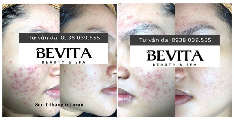 Hình ảnh khách hàng sau 1 tháng trị mụn dậy thì ở Bevita