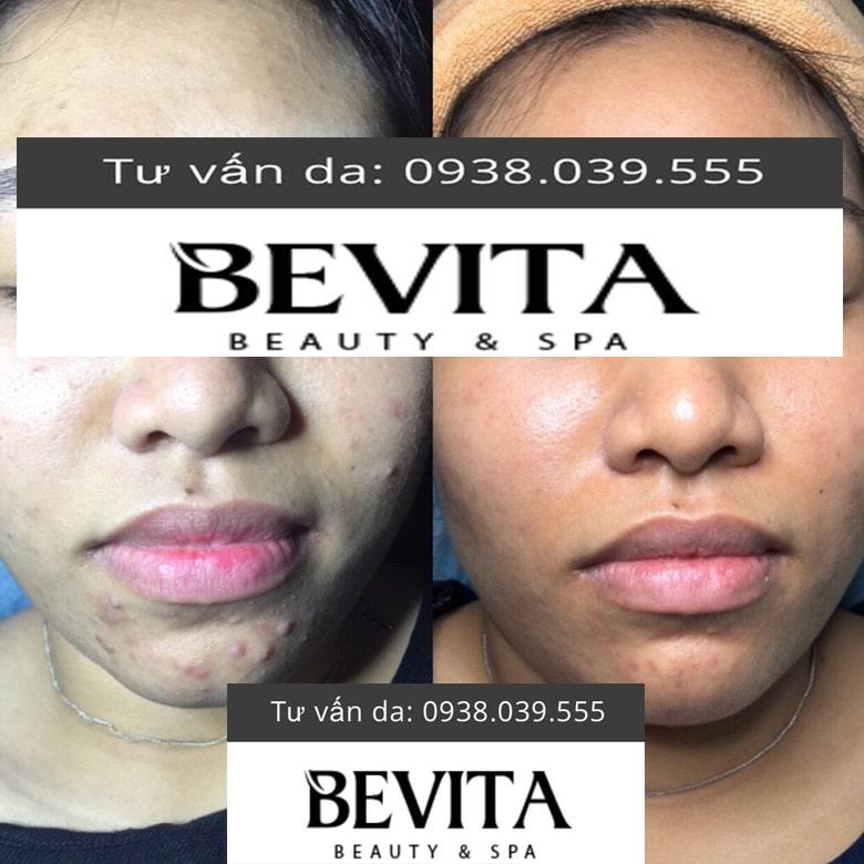 Hình ảnh khách hàng trị hết mụn tại Bevita