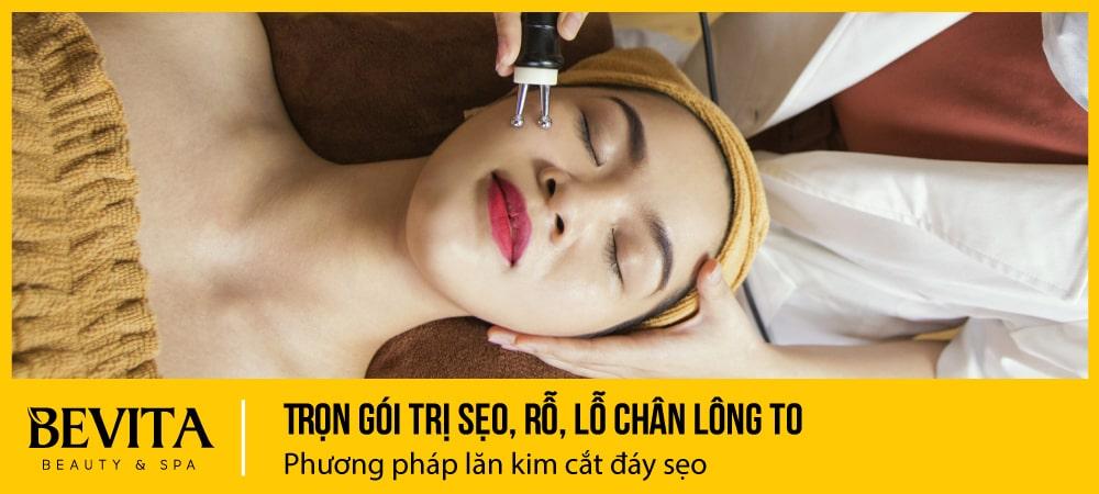 Điều trị sẹo lõm, rỗ, lỗ chân lông to bằng phương pháp lăn kim, cắt đáy sẹo