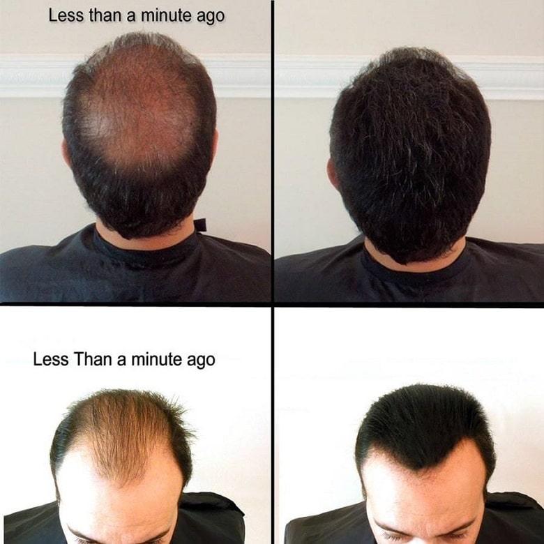 bot-phu-toc-samson-hair-my-hieu-qua-bevita