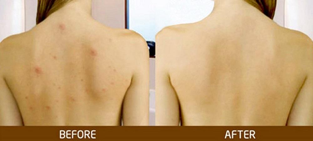 Trị mụn lưng và thâm – Cam kết hiệu quả sau 1 tháng
