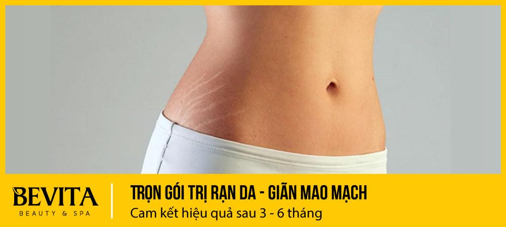 Trọn gói trị rạn da, giãn mao mạch: cam kết hiệu quả sau 3 – 6 tháng