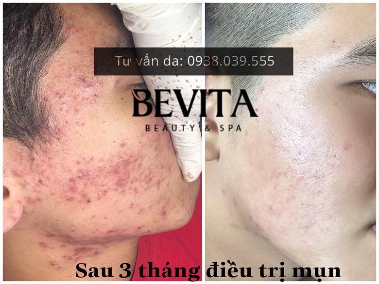 Hình ảnh khách hàng sau 3 tháng điều trị mụn tại Bevita