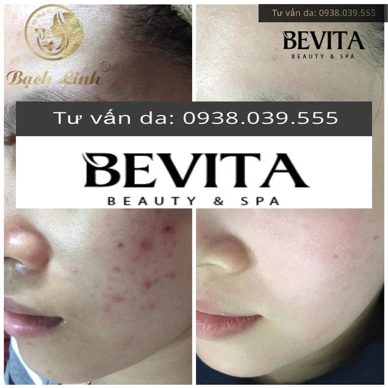 Hình ảnh khách hàng điều trị mụn thành công tại Bevita