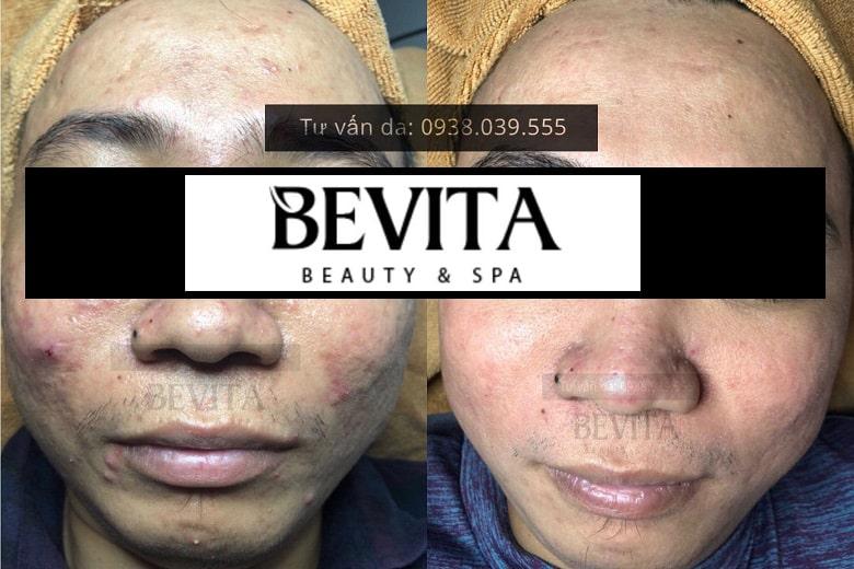 Hình ảnh khách hàng trị mụn thành công tại Bevita