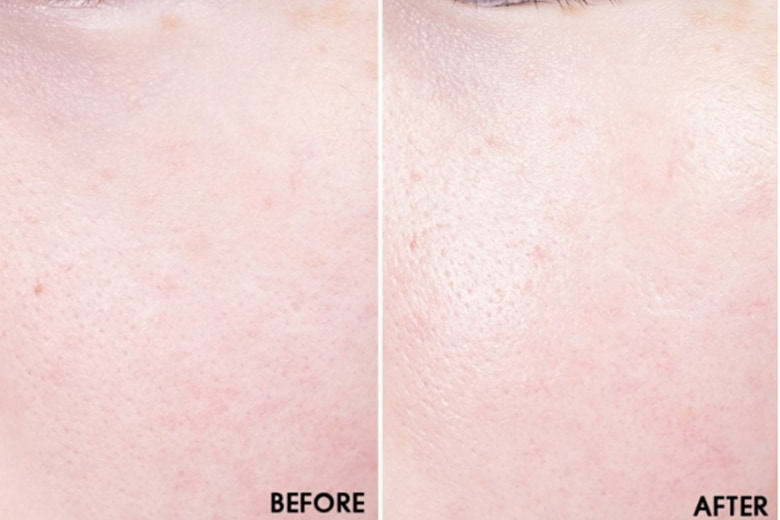 Some-By-Mi-Galactomyces-Pure-Vitamin-C-Glow-Serum-anh-before-after