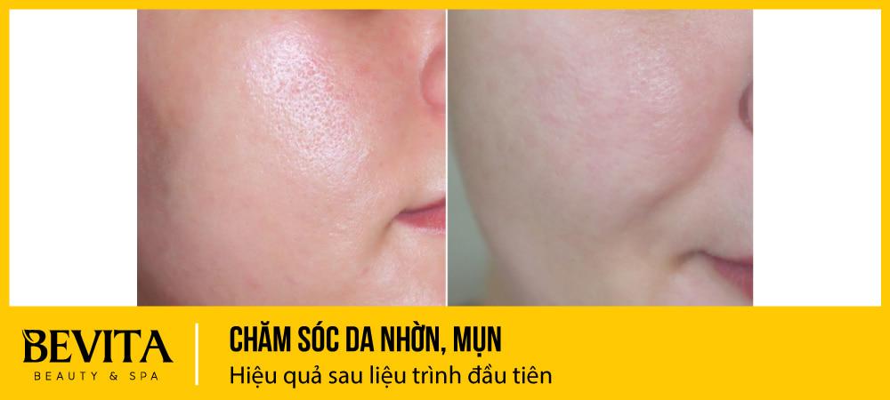 Chăm sóc da nhờn, mụn – Hiệu quả sau liệu trình đầu tiên