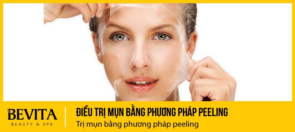 Điều trị mụn bằng phương pháp peeling (thay da sinh học)