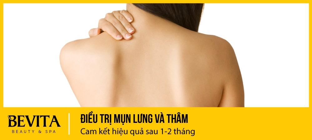 Điều trị mụn lưng, mụn cơ thể và thâm mụn: Cam kết hết sau 1 tháng