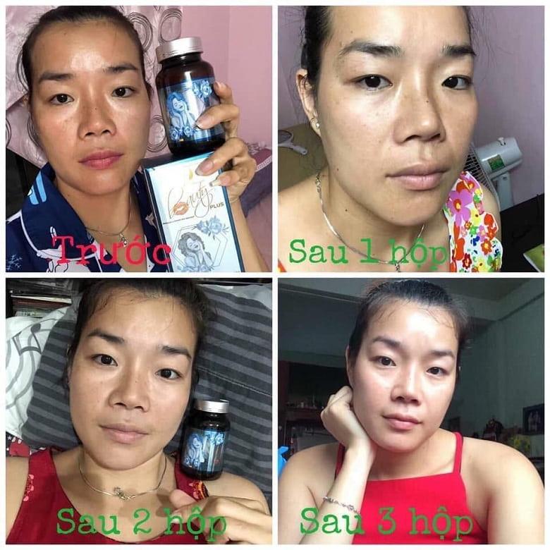 Phản hồi khách hàng trước và sau khi sử dụng beauty plus chính hãng Bevita