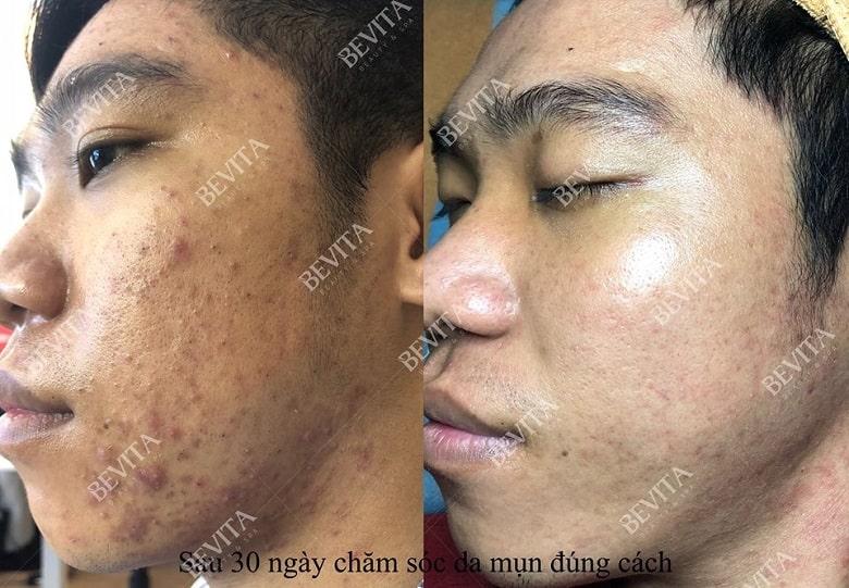 Hình ảnh trước và sau Bình trị mụn và chăm sóc da tại Bevita