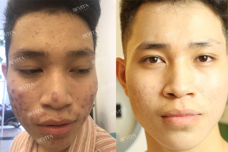 Hình ảnh trước và sau khi Khoa điều trị mụn sau 3 tháng tại Bevita