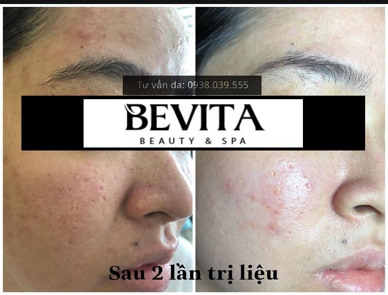 Hình ảnh chị Bích Ngọc trước và sau 2 lần trị liệu tại Bevita Beauty & Spa
