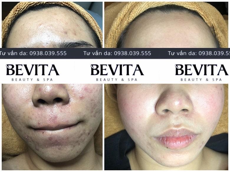 ảnh trước và sau điều trị mụn của chị My tại Bevita