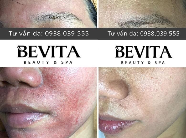 Ảnh trước và sau trị da nhiễm Corticoid tại Bevita