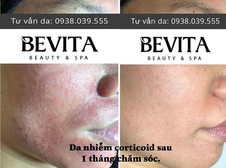 Ảnh trước và sau trị da nhiễm Corticoid của chị Trân tại Bevita