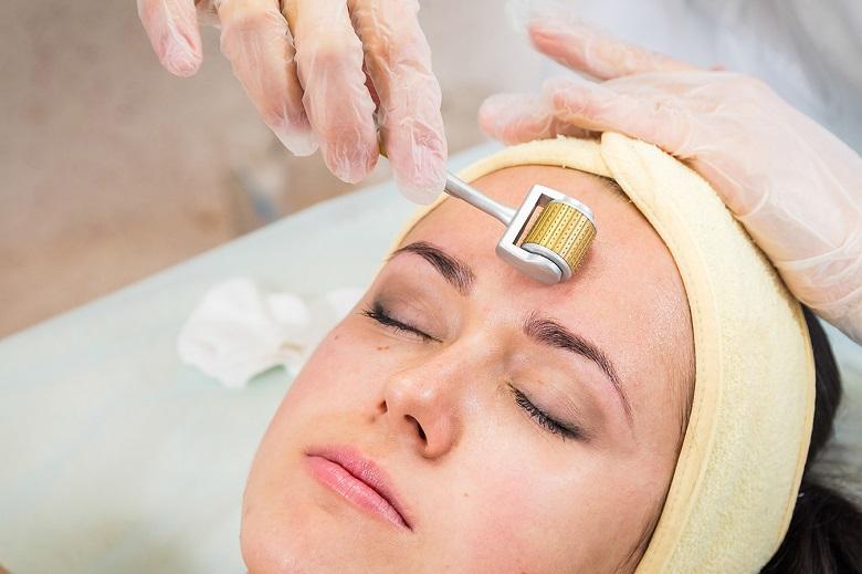 Cách chăm sóc da sau lăn kim tại nhà