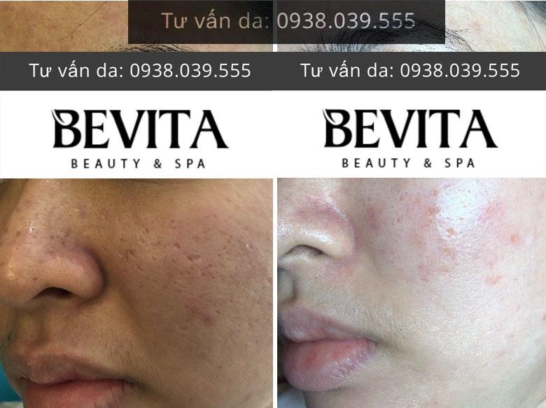 Hình ảnh chị NGọc trước và sau trị mụn thâm sẹo