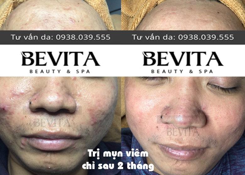 Ảnh trước và sau điều trị mụn viêm tại Bevita
