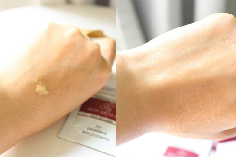 Trước và sau khi sử dụng kem mật ong Manuka 16+
