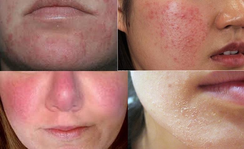 Hiện tượng sau khi peel da
