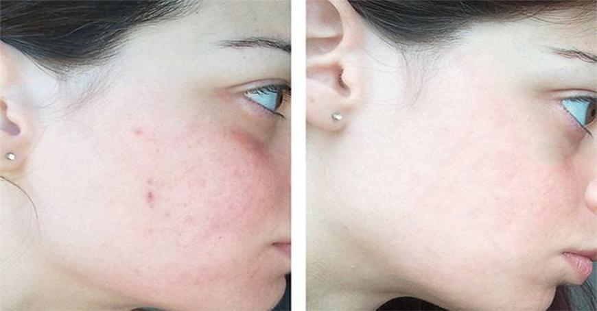 Công dụng làm trắng sáng da của Vitamin C, Niacinamide
