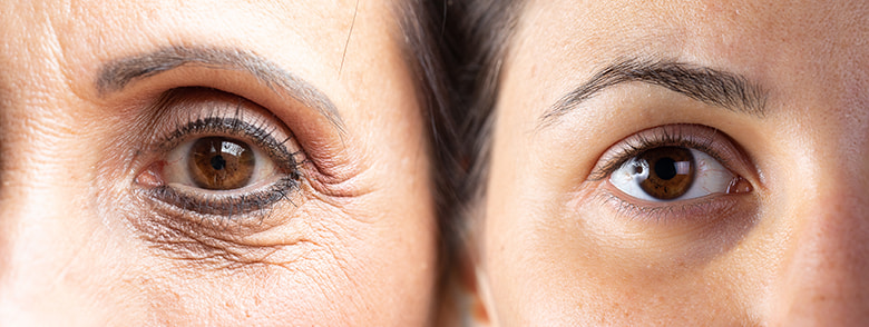 Dấu hiệu lão hóa bắt đầu xuất hiện từ 25 tuổi hoặc sớm hơn