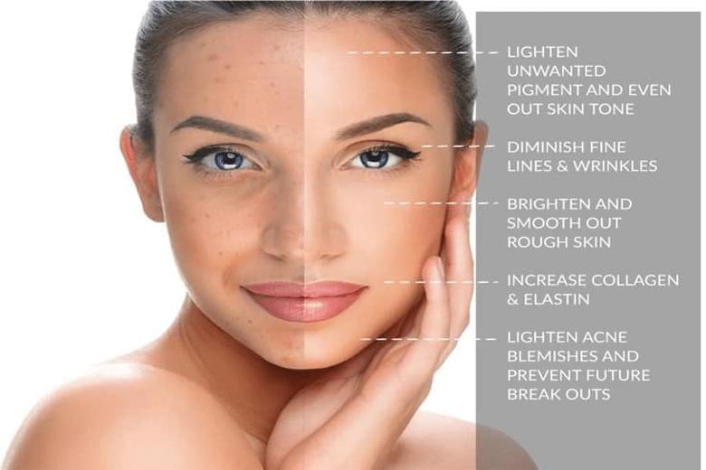 Cần dùng sản phẩm nào để peel da tại nhà hiệu quả nhất?