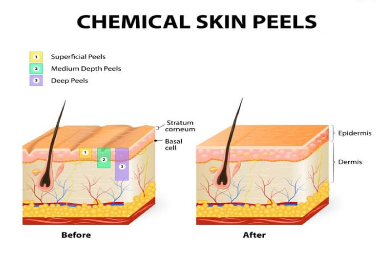 Peel da là gì?