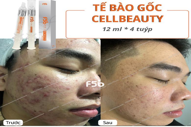 Tác dụng tế bào gốc vạn năng F5B Cell Beauty Ampoule 12ml